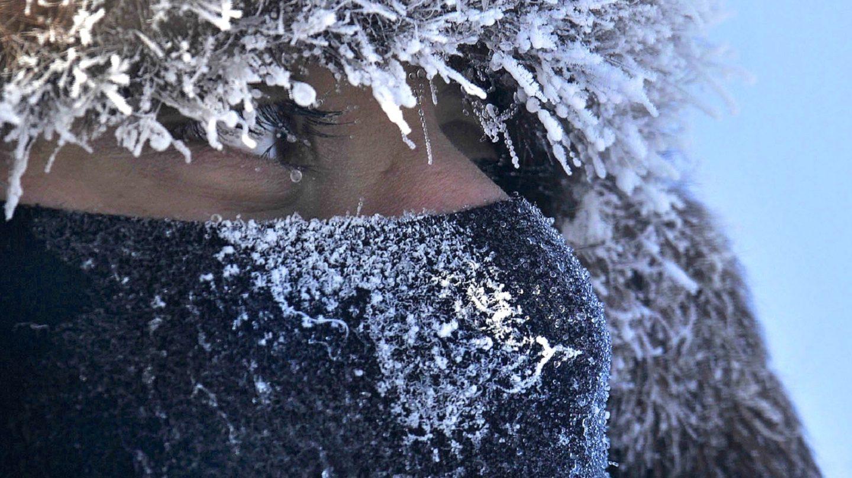 Droge neus in de winter? Zo kom je er vanaf!